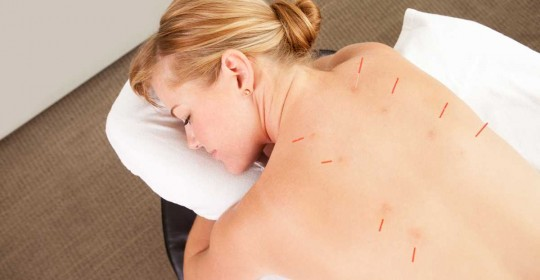 Pain relief from acupuncture is real – University of Pennsylvania study finds