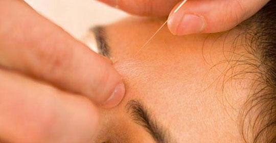 Building mental and emotional wellbeing with Acupuncture and Chinese Medicine